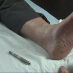Dr Rod Hughes - Foot Injections