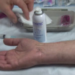 Dr Rod Hughes - Hand & Wrist Injections